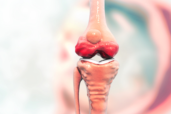 Artrosis Tratamiento Onintza Zubizarreta Agirre